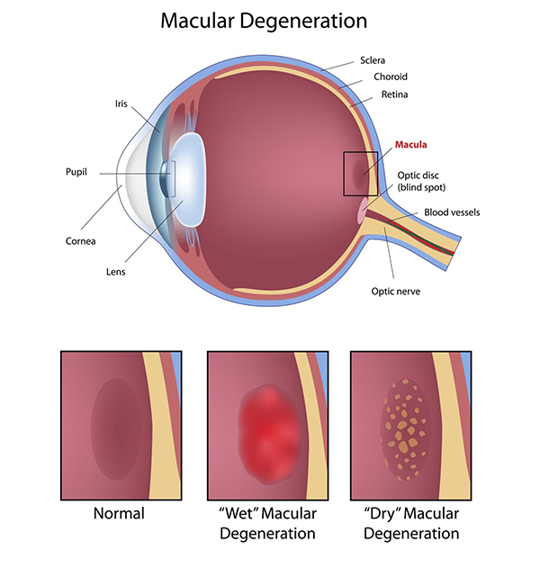 west new york macular degeneration